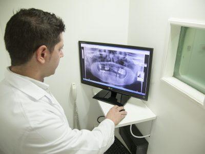 gdzie wyrzucac klisze rentgenowskie 400x300 - Gdzie wyrzucać klisze rentgenowskie ?